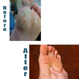 Foot And Ankle Clinic: May 2015