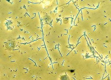 Identify These Microscopic Urine Components Flashcards
